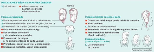El País, hoy: Sobre la falta de equidad en la atención al parto en ...